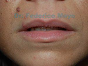 aumentar labios