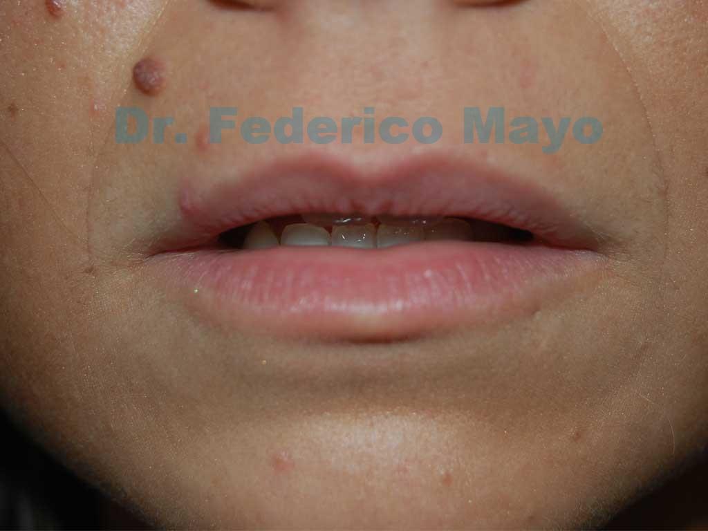 Acido Hialuronico PRE Dr. Mayo