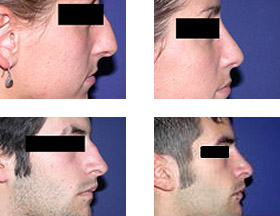 Rinoplastia - cirugia de la nariz en Madrid- Dr. Federico Mayo