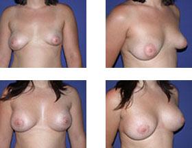 Asimetría mamaria 1