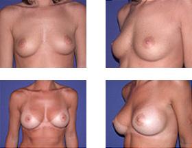 antes y después de aumento de senos