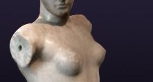cirugia-mamaria-aumento-mamario