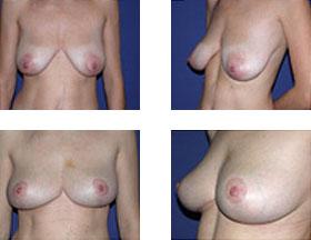 Mastopexia (elevación de las mamas) 1