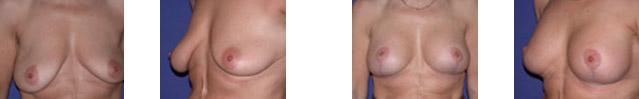 Mastopexia (elevación de las mamas) 2