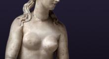 cirugia-mamaria-mastopexia