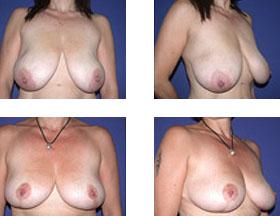 Reducción de pechos