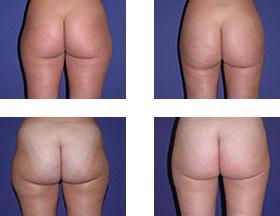 liposucción- antes y después