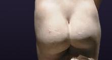 tratamientos-quirurgicos-corporales-piernas-gluteoplastia