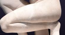 tratamientos-quirurgicos-corporales-piernas-lipoescultura