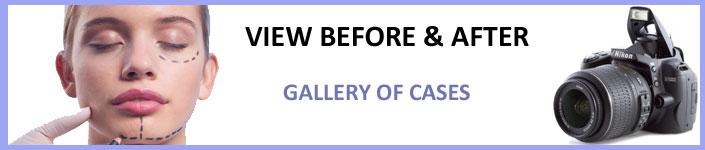 galeria-de-casos-ingles