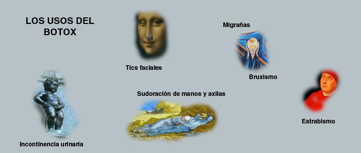 Usos del botox