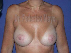 Aumento  Mamario con implantes anatómicos