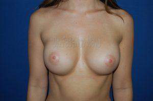 mamoplastia de aumento - madrid