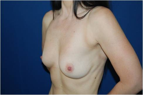 Aumento mamario con implantes redondos