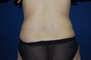Abdominoplastia Después