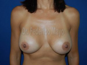 Caso 50 - post - implantes anatomicos
