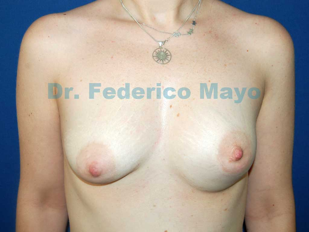 Asimetría mamaria y mamas tuberosas