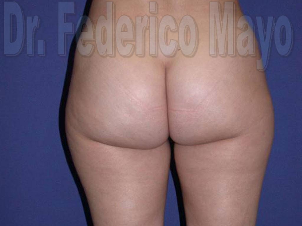 Liposucción Caso22- antes