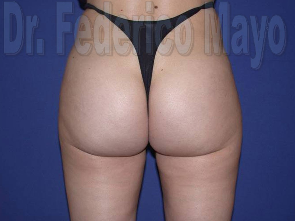 Liposucción Caso23- después