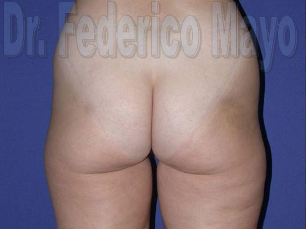 Liposucción Caso24- antes