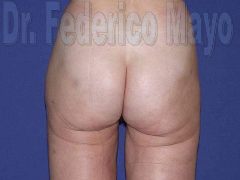 Liposucción Caso25- después