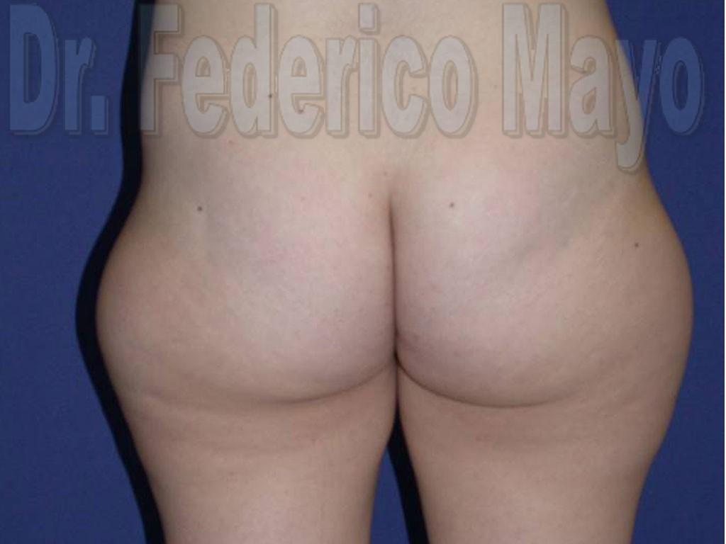 Liposucción Caso26- antes