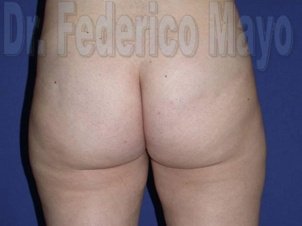 Liposucción Caso26- después