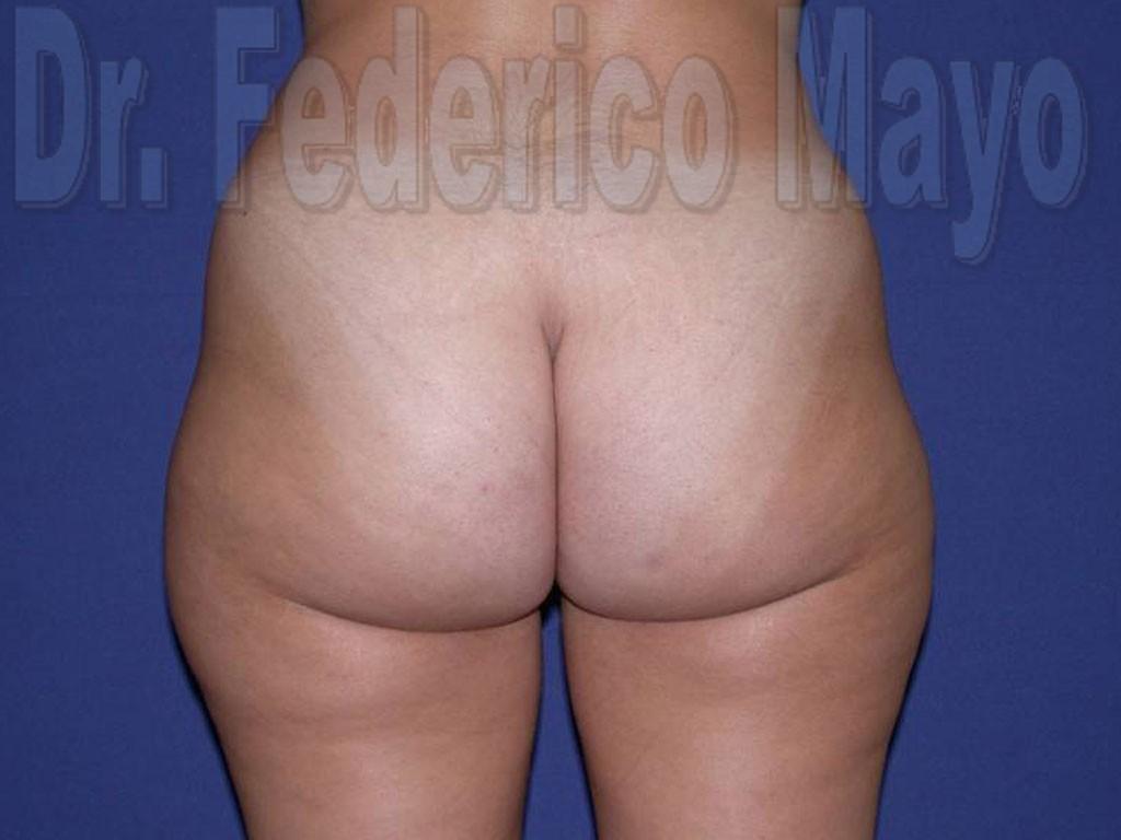 Liposucción Caso28- Antes