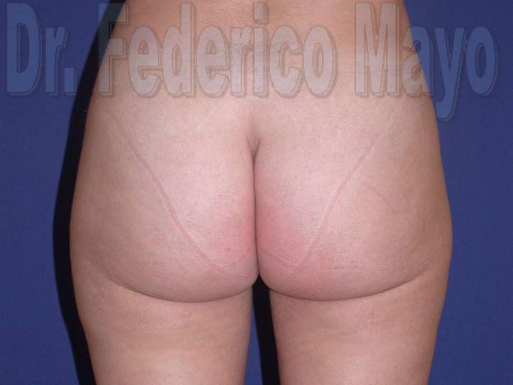 Liposucción Caso28- después