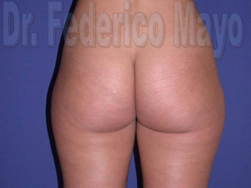 Liposucción Caso30 - antes