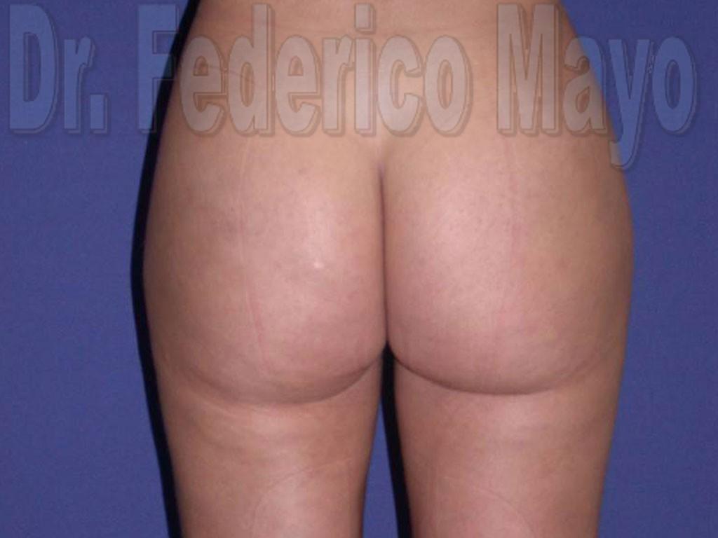 Liposucción Caso30- después