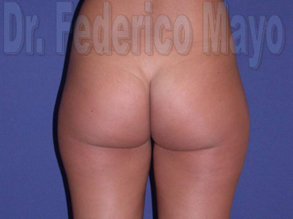 Liposucción Caso31-Antes