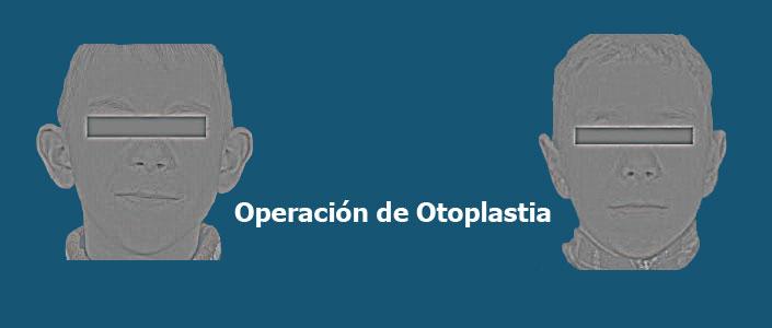 Operacion Otoplastia
