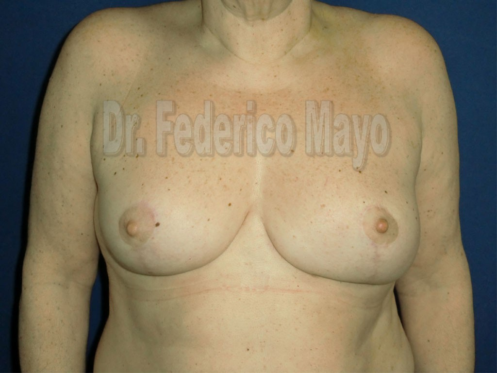 Cirugía Mamaria de Reducción - Después