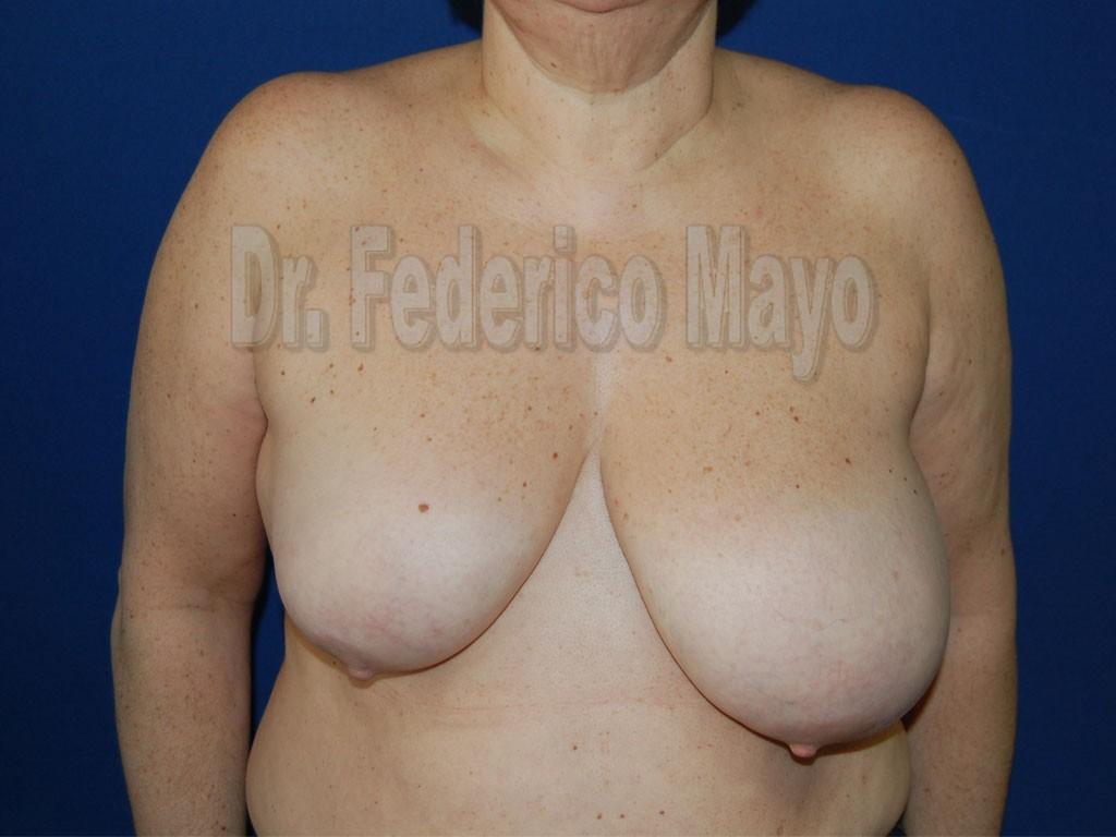 Cirugía Mamaria de Reducción - Antes