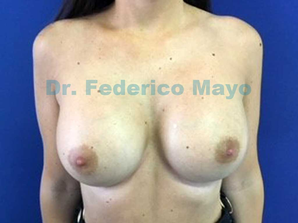 implantes anatómicos true fixation de 415 cc