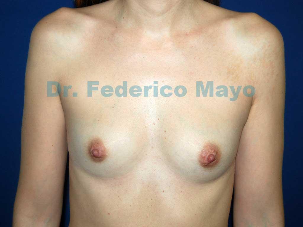 Aumento Mamario con prótesis anatómicas