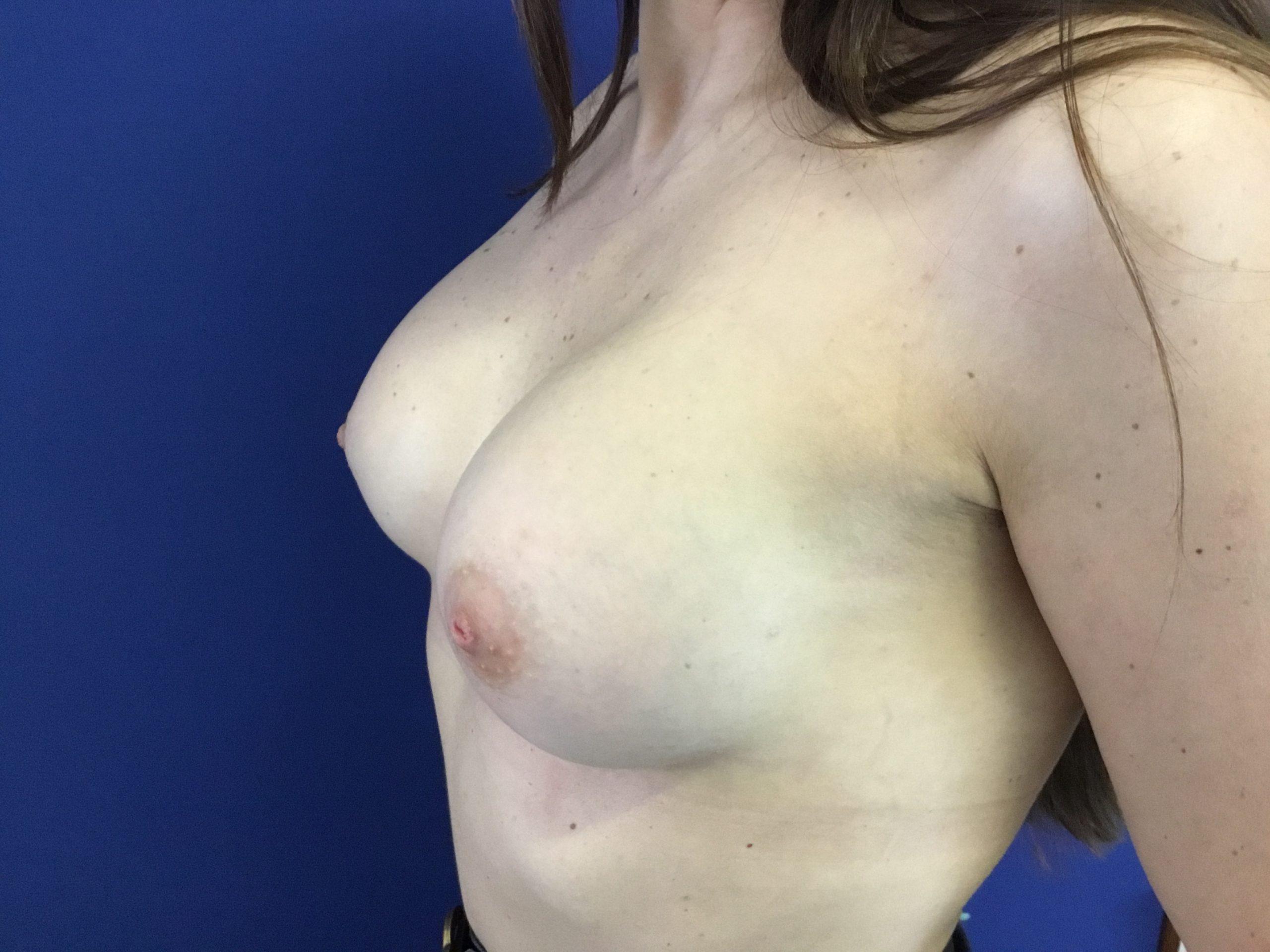 Aumento Mamario con implantes ergonómicos