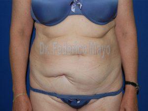 Abdominoplastia44-pre