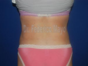Abdominoplastia44-post3