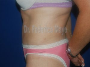 Abdominoplastia44-post2