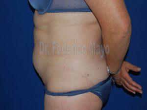 Abdominoplastia44-pre2
