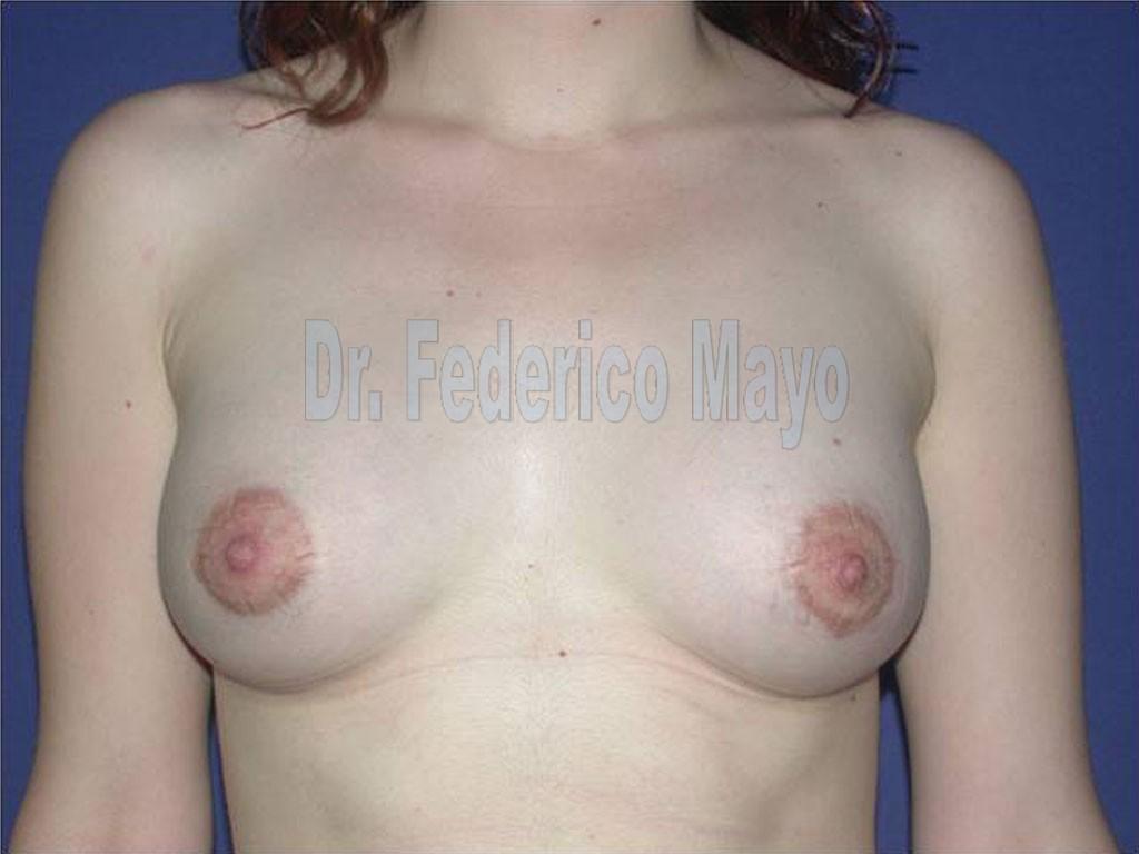 mamas tuberosas 2 post1