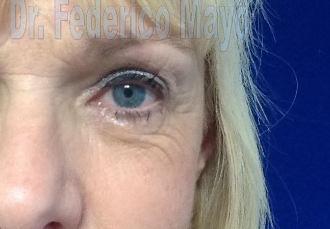 Blefaroplastia Dr. Mayo post 88