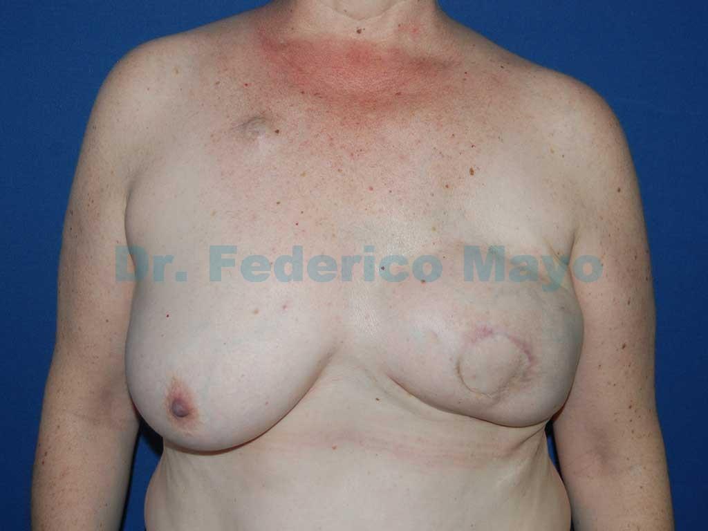Reconstrucción mamaria