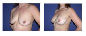 Implantes anatómicos de alta proyección