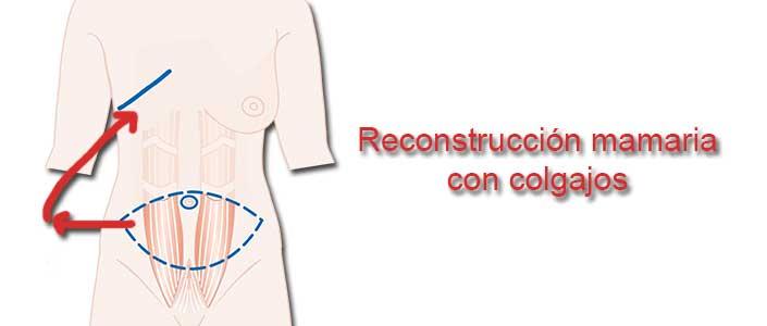 Reconstrucción mamaria con colgajos