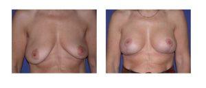 Mastopexia vertical o en T invertida con implantes anatómicos o ergonómicos de alta proyección (dependiendo de la cantidad de piel extirpada)