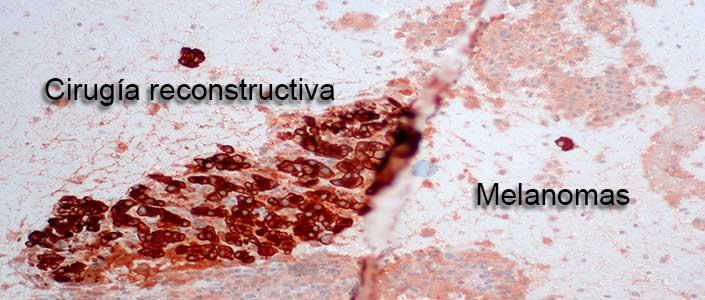 Cirugía reconstructiva para un melanoma