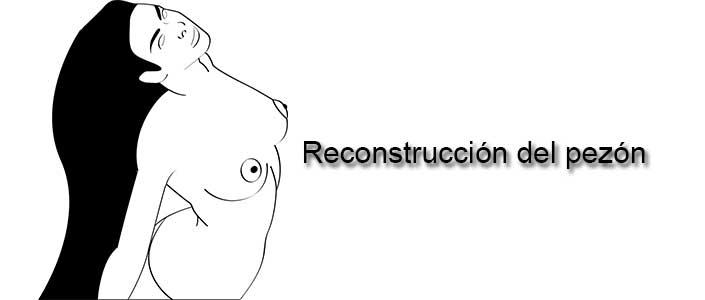 Reconstrucción del pezón